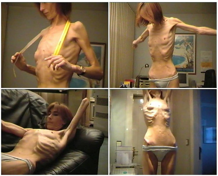 AnorexiaD188_cover_l.jpg